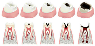 Dr. Safadi, Angel Smiles Dental, Crown Point, IN Dentist, Root Canals