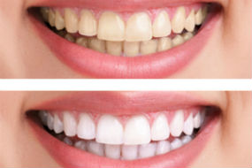 Dr. Safadi, Angel Smiles Dental, Crown Point, IN Dentist, Teeth Whitening